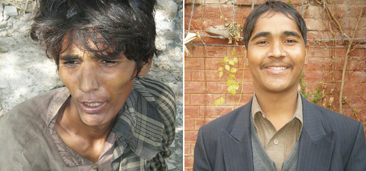 Khalid, a street child, before and after being treated at Dost Foundation - Dost Foundation, Peshawar